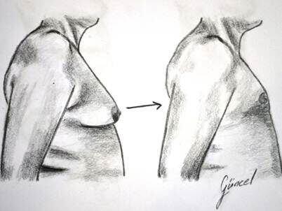 erkekte-gogus-estetigi